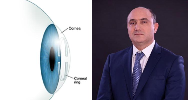 الدكتور هيكل كمون يقوم بإنجاز طبي الأول من نوعه في مجال طب العيون في العالم